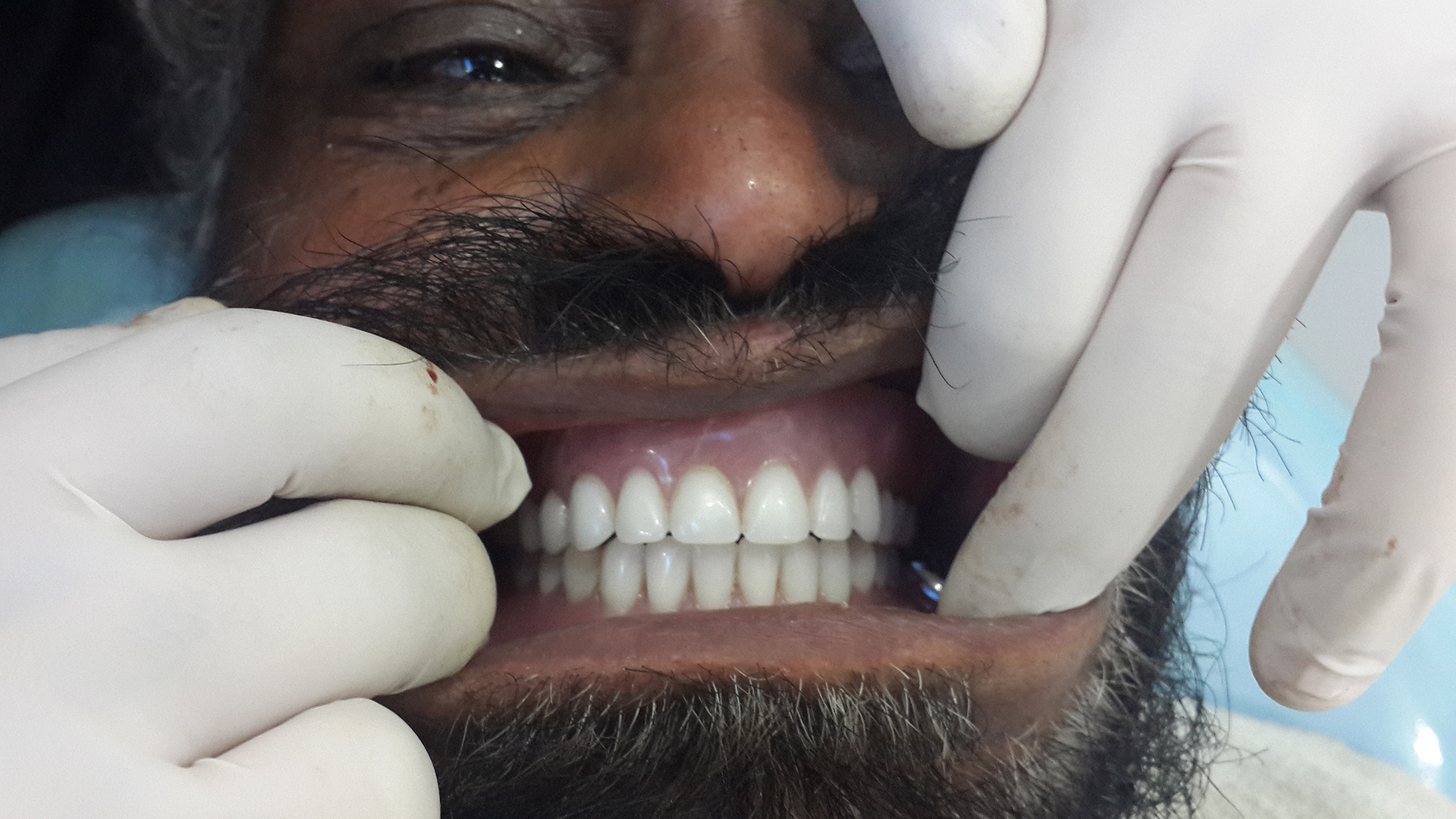 dental implant clinics in jalandhar india