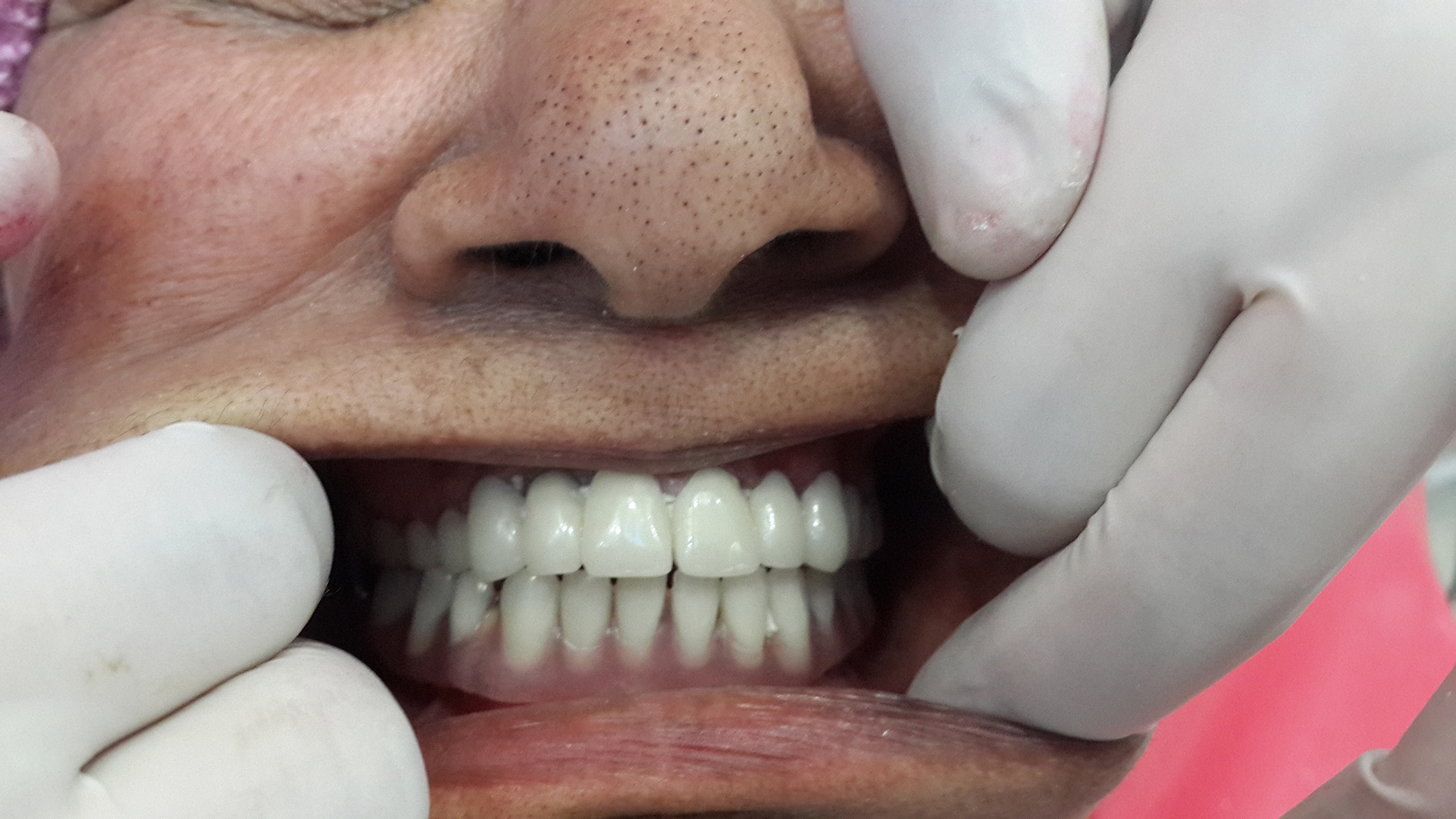 dental implant clinic jalandhar india