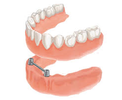 Dental implants in  jalandhar,dental implant surgery in jalandhar punjab india