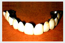crown-bridge-work_clip_image002