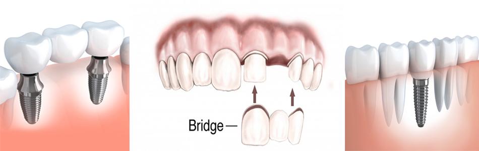 dental implant surgery in jalandhar punjab india
