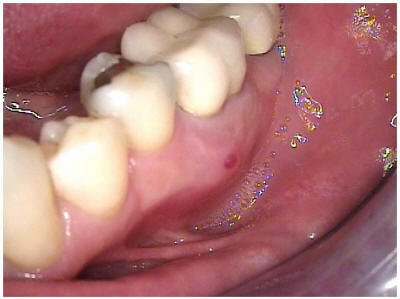 tooth-extraction_clip_image001