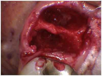 tooth-extraction_clip_image003