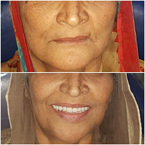 fixed teeth dental implants in just 3 days india punjab